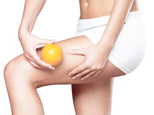 Cellulite-Skin-On-Her-Legs-52651474